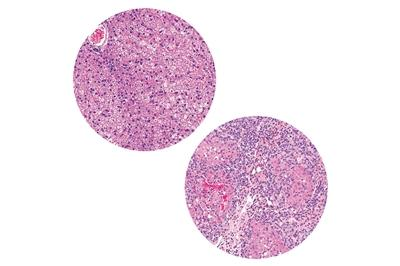Normal healthy liver (left) compared to unhealthy diseased liver (right) with hepatic cirrhosis