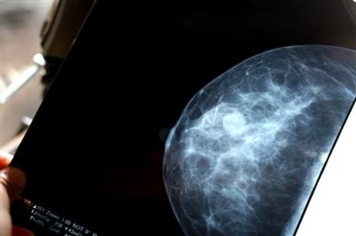 3D Tomo Mammography