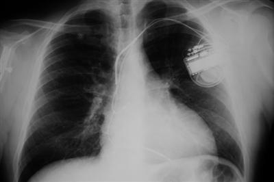 X-ray of a pacemaker in a chest