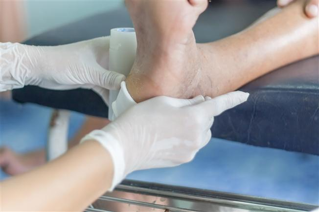 chronic wound care