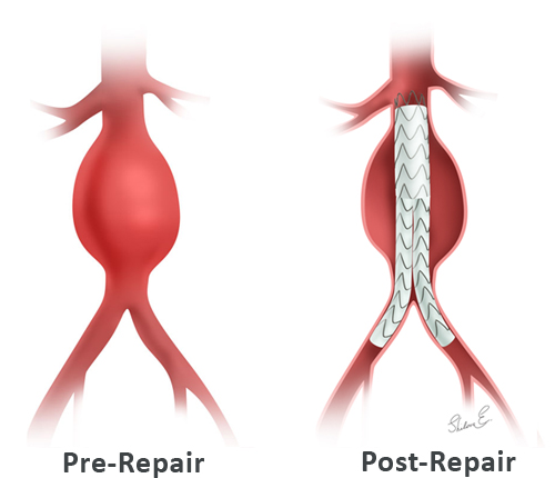Abdominal aortic aneurysm endovascular surgery pre- and post-repair