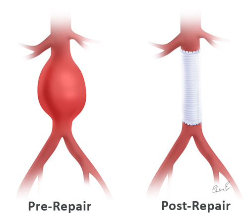 Abdominal Aortic Aneurysm Open Surgery Pre And Post Repair