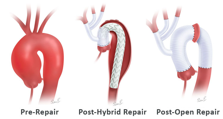 Aortic arch replacement at pre-, post-hybrid and post-open repair stages