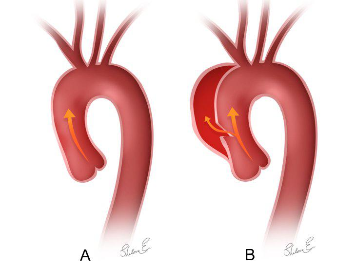 Normal blood flow (A) vs. abnormal blood flow in-between the layers of aortic wall in type a aortic dissection (B)