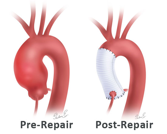 Aortic root reconstruction pre- and post-repair