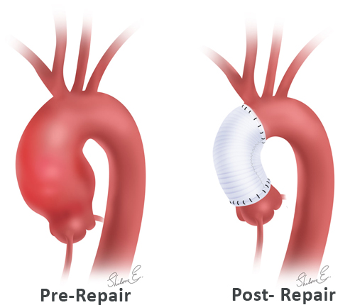 Ascending aortic replacement pre- and post- repair