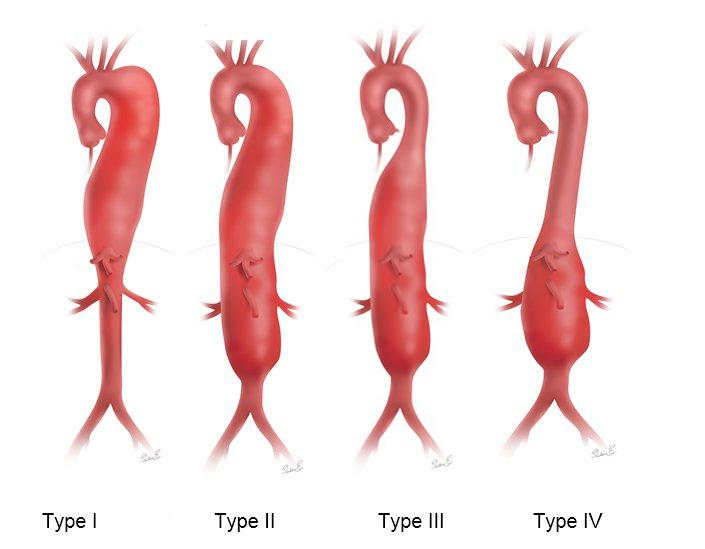 Thoracoabdominal aortic aneurysms, Crawford classification