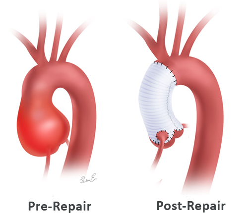 Valve-sparing aortic root surgery pre- and post-repair