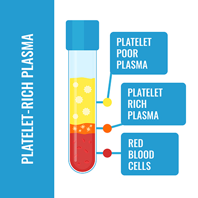Illustration of platelet-rich plasma in a test tube, showing the three levels: red blood cells at the bottom, platelet-rich plasma, and platelet-poor plasma at the top