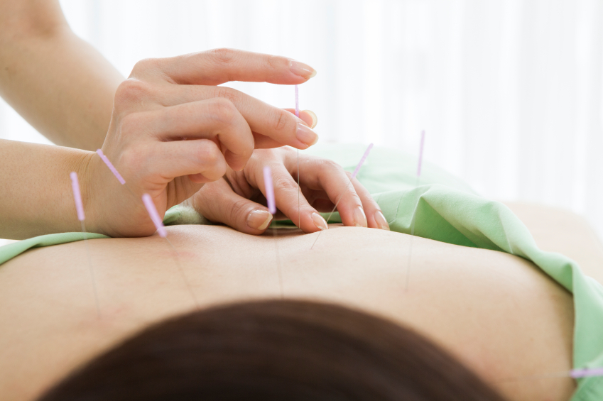 person getting acupuncture preformed on their back
