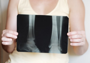 woman holding X-ray of lower legs