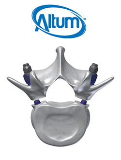Altum® Pedicle Osteotomy System artist rendering