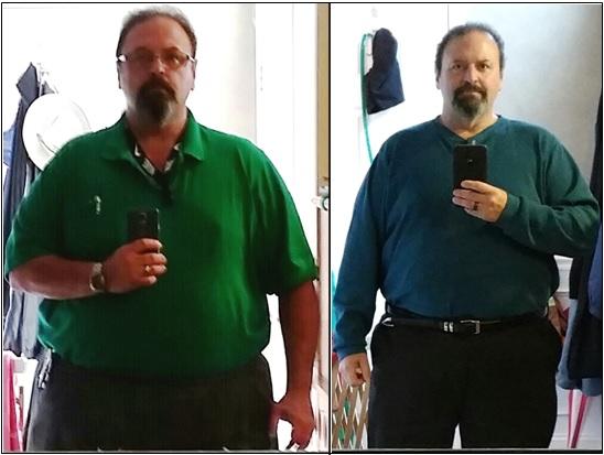 Medical Weight Loss Program Offers Alternative To Surgery Main Line Health Philadelphia Pennsylvania