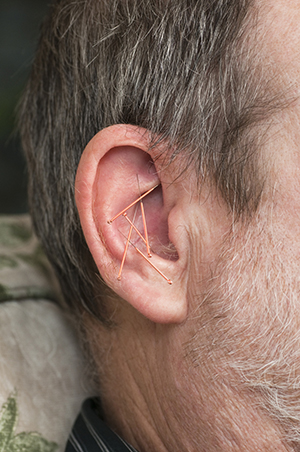 Close-up picture of acupuncture needs in an ear
